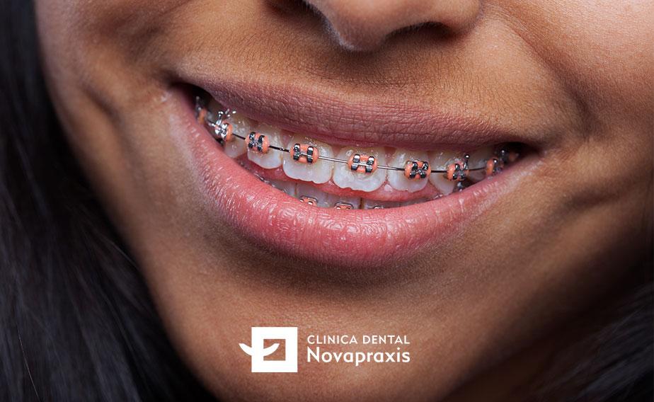 Tipos de ortodoncia fija